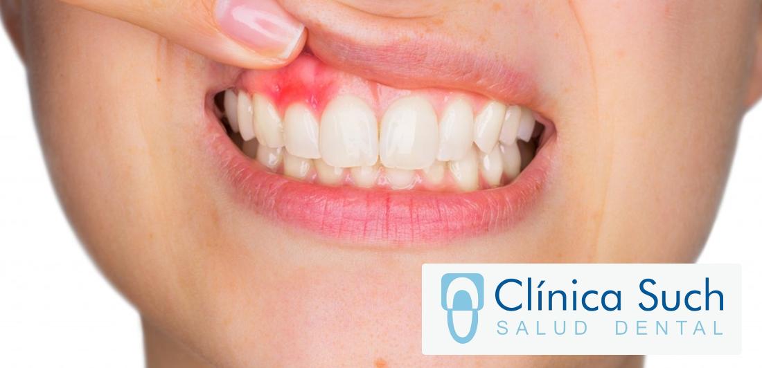 la-periodontitis-tratarla