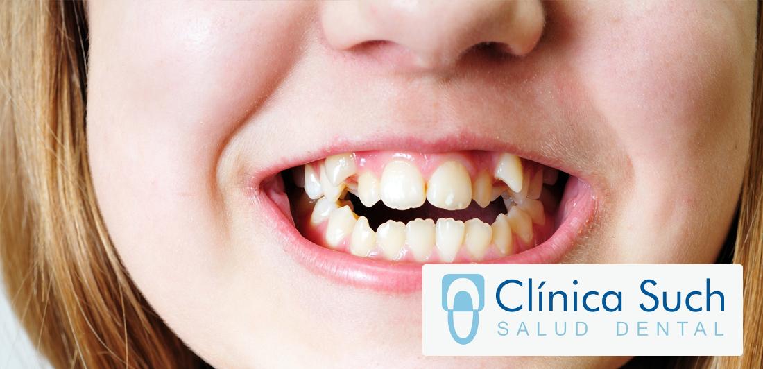 Tratamiento contra el apiñamiento dental a todas las edades