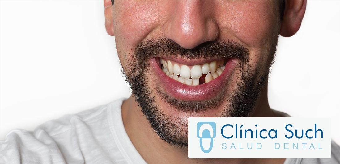 Consecuencias de perder una pieza dental y no realizarse un implante a tiempo