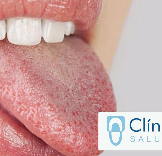 Cómo prevenir la sequedad bucal o Xerostomia