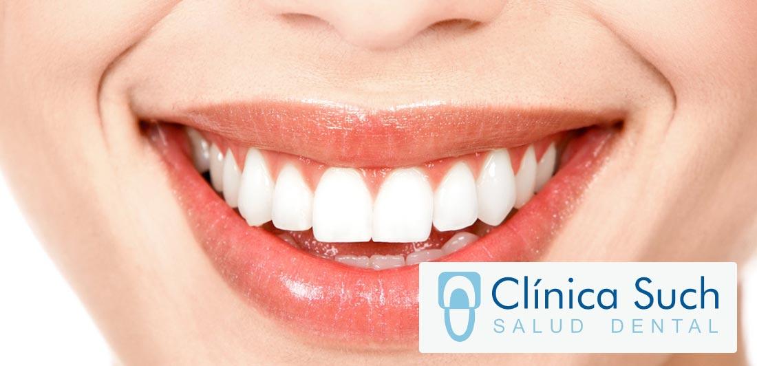 consejos-para-mantener-los-dientes-blancos
