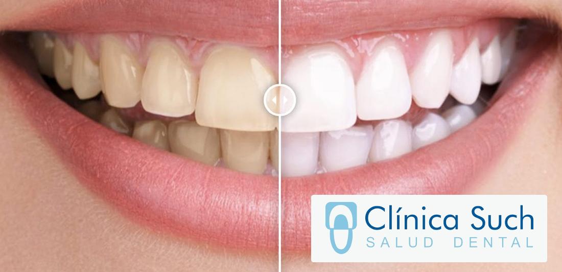Consejos y recomendaciones después de hacerse un blanqueamiento dental